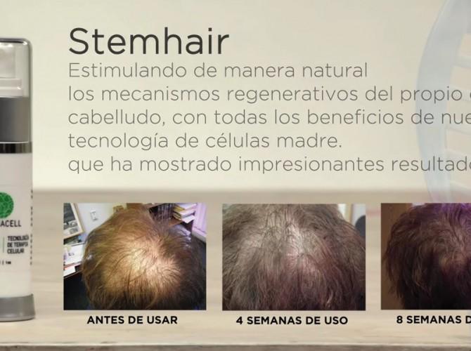 stemhair2